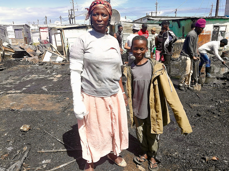 Nondingazi Ntsukumbini is lucky to be alive after her son, 10-year-old Aphelele Ntsukumbini, dragged her to safety after their home caught fire on October 15 2018 Nondingazi's 20-month old grandson died in the shack fire