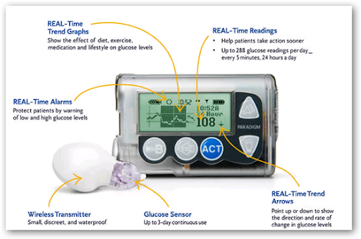 Medtronic Hits The Million Mark With Real Time Insulin