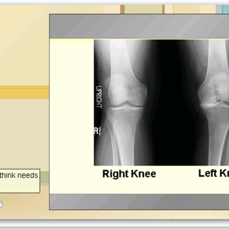 Welcome to Edheads Virtual Knee Surgery