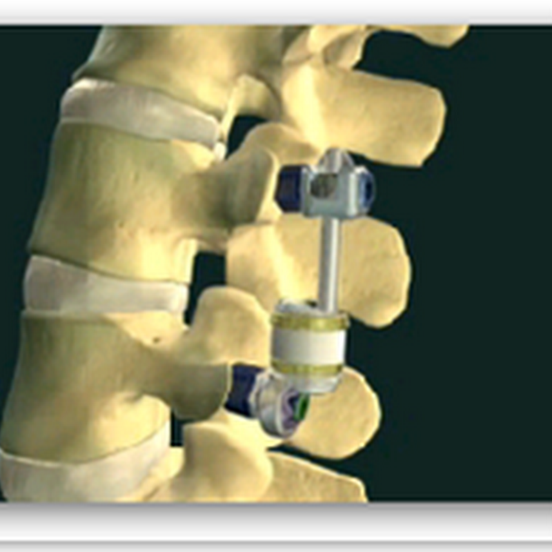 Bon Secours DePaul Medical Center Orthopedic Surgeon Is First In Virginia To Implant 'Motion Preserving' Spinal Device To Treat Lumbar Spinal Stenosis