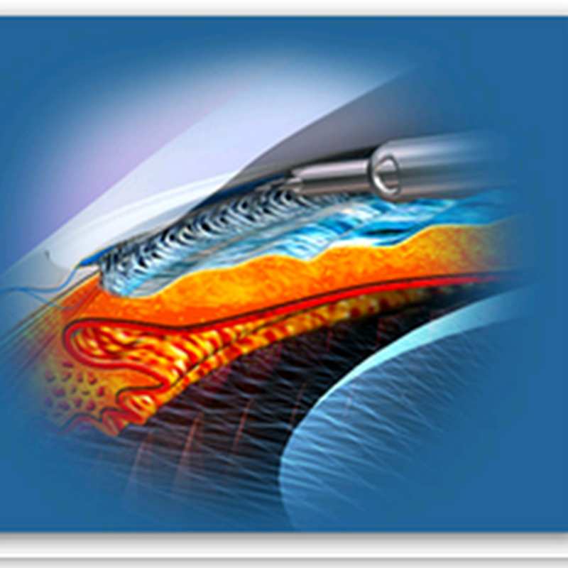 NeoMedix Offers Innovative Minimally Invasive Glaucoma Surgery