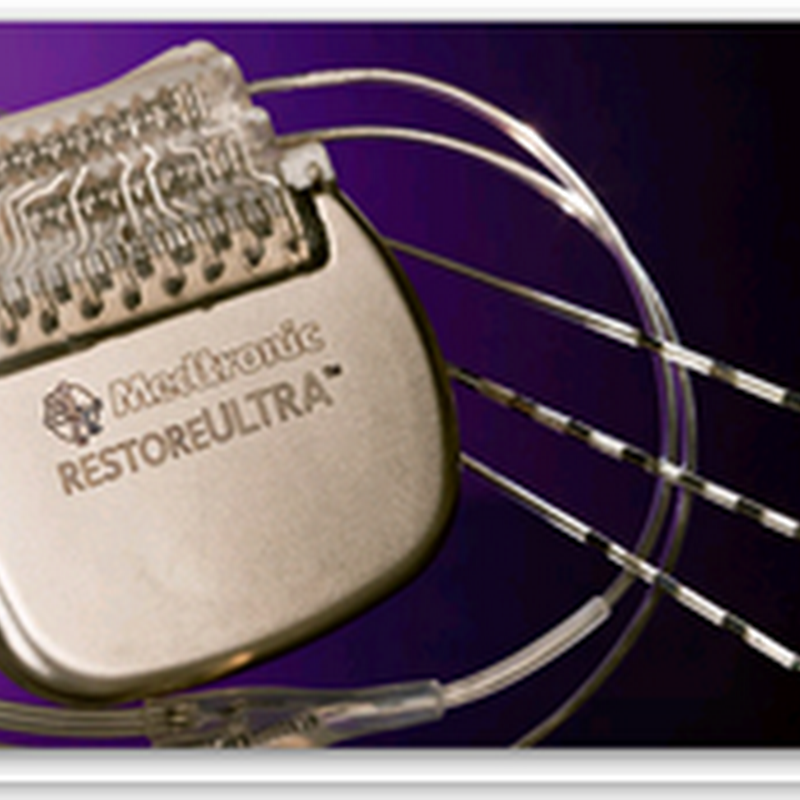 Medtronic Receives U.S. FDA Approval for New Neurostimulator with Innovative Patient Programmer