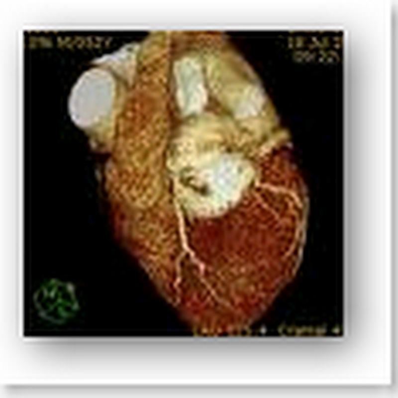 Freezing Heart Murmurs