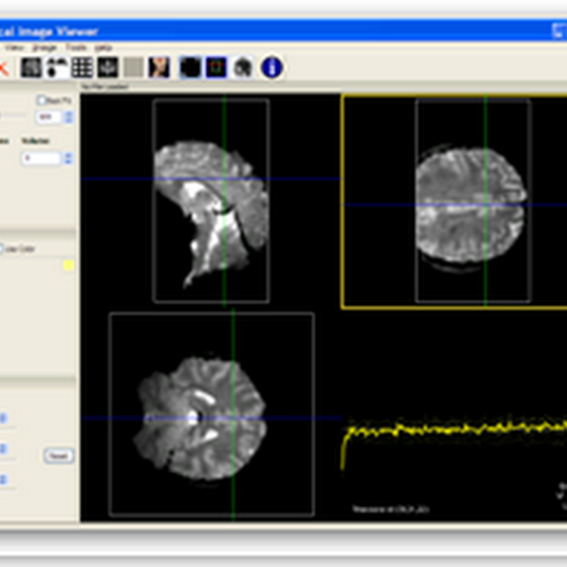 MIView - Open Source (free) Medical Image Viewer