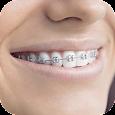 Teeth Braces Photo Maker- Braces Camera Editor icon