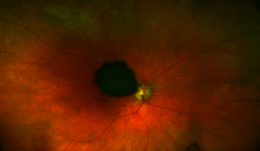 Photo: What is this? Clue #1. This color image was taken with the Optos 200 degree scanning laser ophthalmosope. Notice the appearance of the optic nerve head.