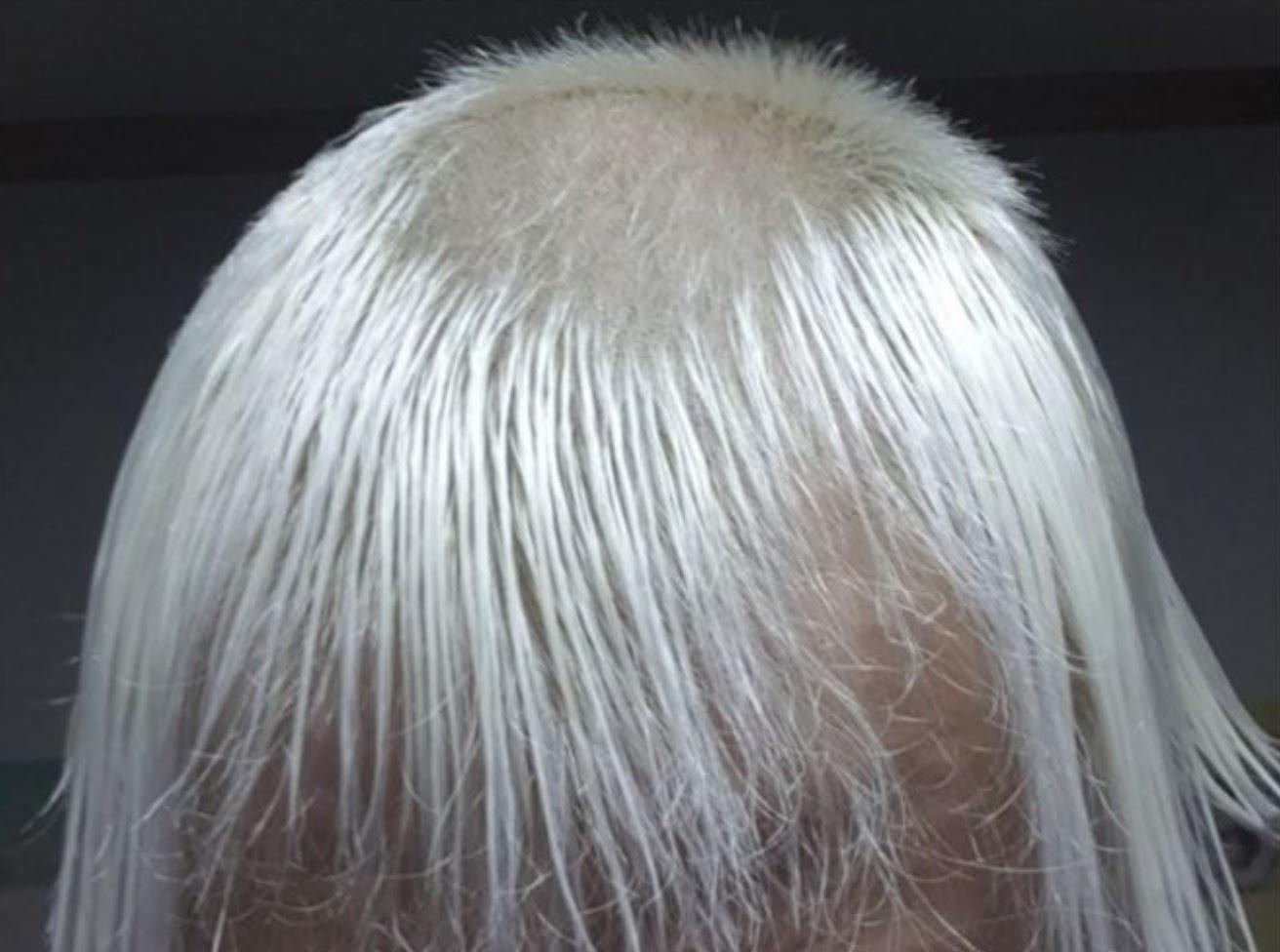 hair9 bald