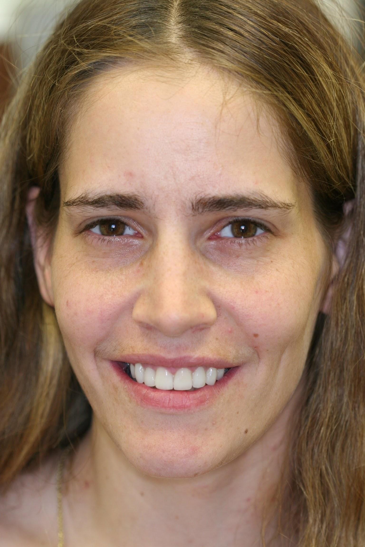 Holistic Dentist Brooklyn NY   Biological Dentistry   844-735-8863