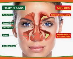 Menyembuhkan Sinusitis Secara Alami