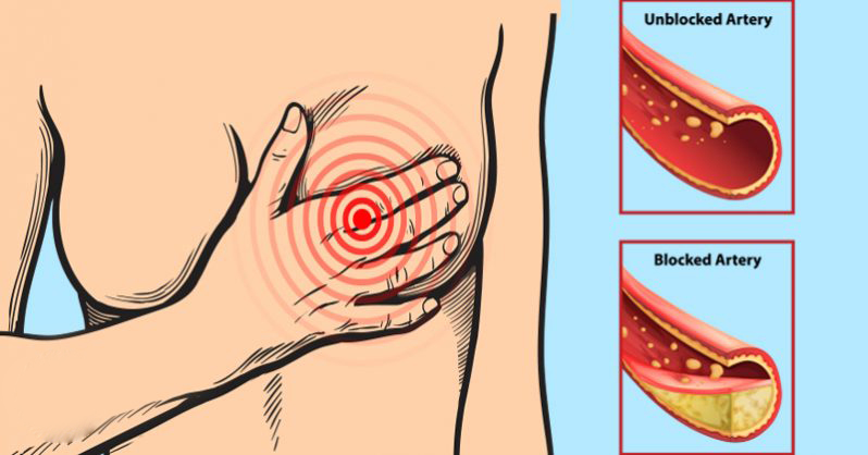 9 foods you should eat daily for clean and unclogged arteries
