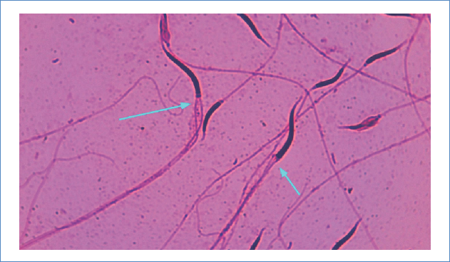C. molossus oaxacus spermatozoa stained with 40X basic fuchsin. The blue arrows indicate defects in the implantation pit.