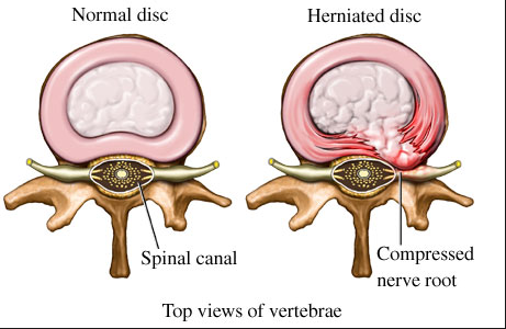Image result for disc herniation