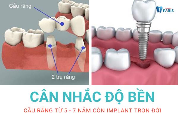 60 tuổi mất răng nên bắc cầu răng hay làm Implant? - Ảnh 3