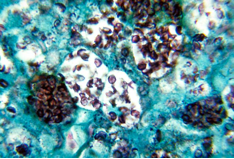 Photo: Histoplasmosis – It's often found in histiocytes; big clusters of yeast forms.