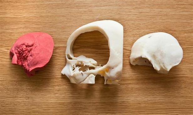 Напечатанные на 3D-принтере пальцы пока не используются в повседневной практике