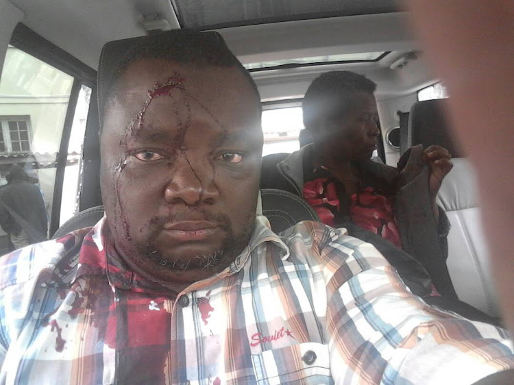 MDC T factions clash in Zimbabwean city of Buluwayo.