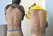 Survivors  Andries   Tsubane  and  Mosimanegape   Thekisho  show the injuries they sustained when they were tortured and assaulted. Pic: Tiro Ramatlhatse. © Sowetan.