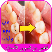تخلص من تسوس الأسنان في يوم واحد Mod