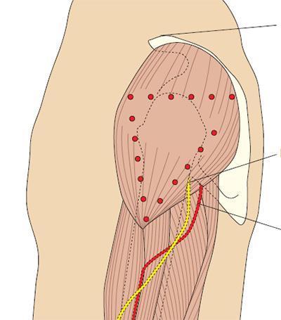 http://nursing.edu.ru/images/content-images/inj5a.jpg