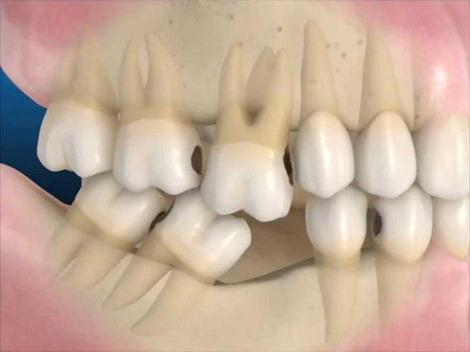 Các răng xung quanh nghiêng ngã, xô lệch, răng đối diện có hiện tượng trồi lên