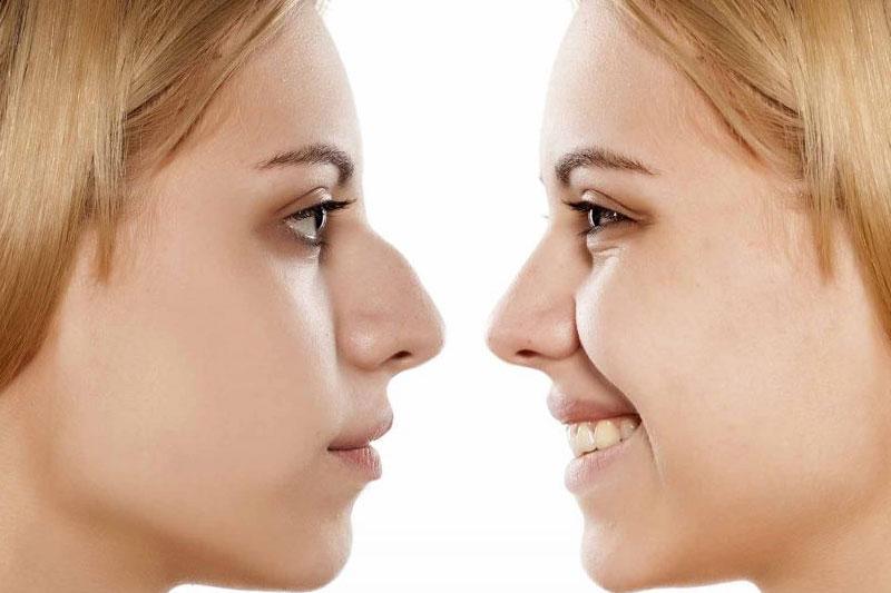 تاثیر عمل بینی بر زیبایی چهره