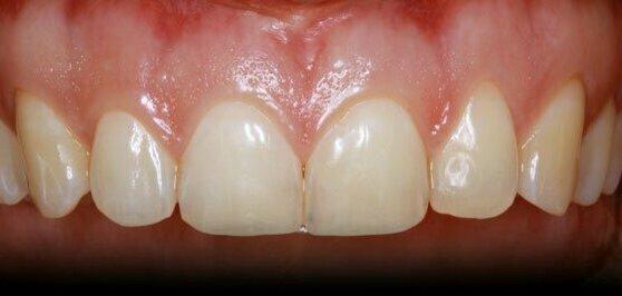 https://www.efp.org/fileadmin/_processed_/9/e/csm_healthy-periodontium_70316ac1c9.jpg