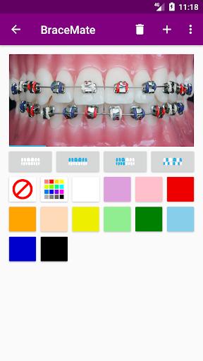 BraceMate 1.4.0 screenshots 2