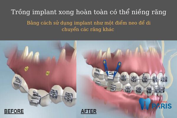 Trồng implant xong có niềng được không?  - Ảnh 2
