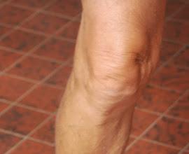 Photo: De knie van???