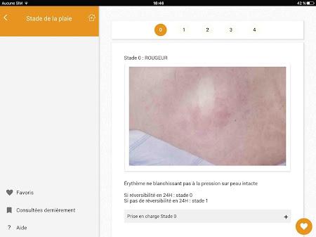 e-mémo plaies chroniques 0.0.2 screenshot 1316222