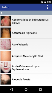 Atlas of Pediatric Dermatology- screenshot thumbnail