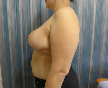 Post - Breast Reduction Surgery