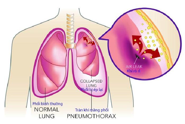 Tràn dịch màng phổi - bệnh lý hô hấp nguy hiểm
