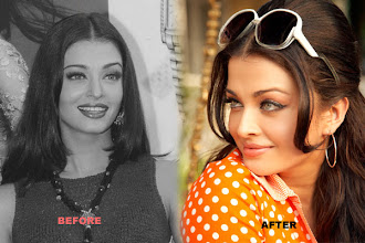 Photo: Aishwarya Rai Bachchan has changed over the last decade and a half in spotlight. You would notice a drastic improvement in her cheeks. She has got fat implants on her cheeks and upper lip. Besides, she is also known to have corrected her jawline and teeth.