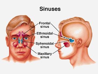 Pengobatan Penyakit Sinusitis