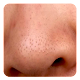 Blackheads Download on Windows