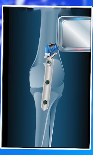 膝盖手术医生的比赛|玩休閒App免費|玩APPs