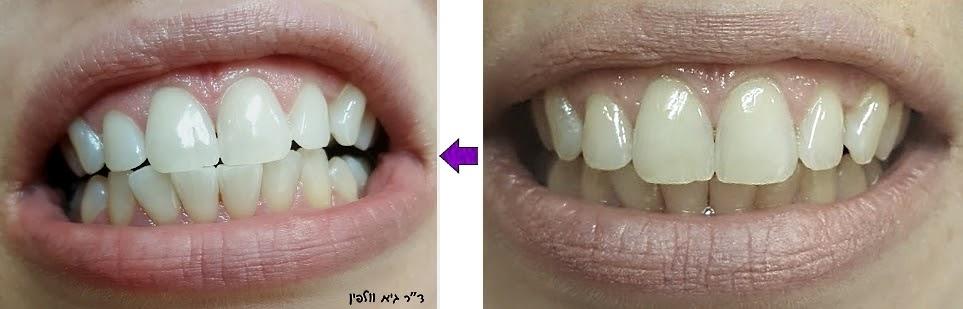 הלבנת שיניים בשעה במרפאה ZOOM - ד''ר גיא וולפין