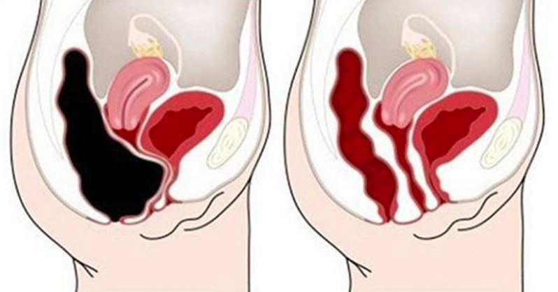 How To Remove Waste From Your Colon Quickly and Safely – Recipe