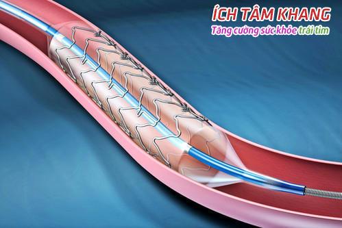 Đặt Stent được thực hiện với quả bóng nong mạch vành