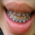braces design icon