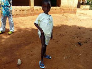 Photo: elle nous montre les traces de son opération qui lui a redonné un parfait usage de sa jambe