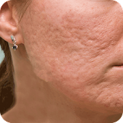 Acne Scar Removal Home Remedy