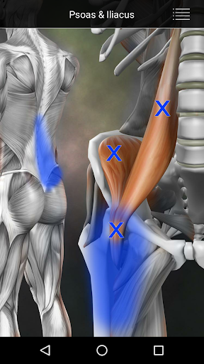 Muscle Trigger Point Anatomy APK download | APKPure.co