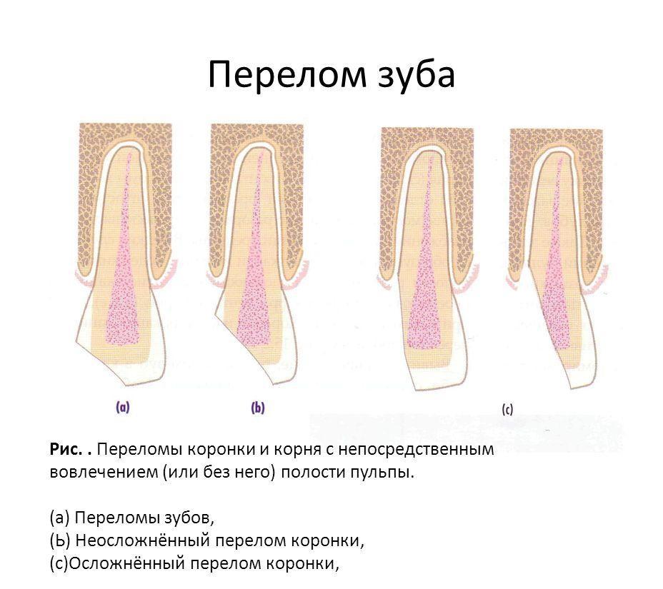 Переломы коронки могут быть разными