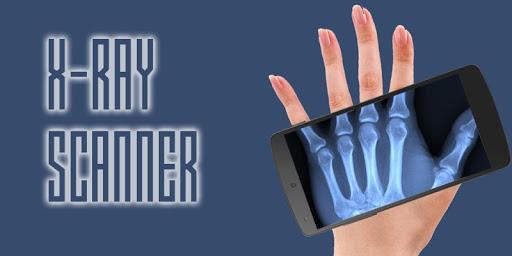 XRay scanner Prank