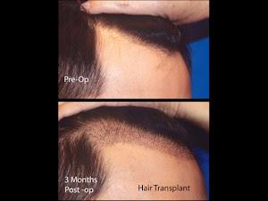 Hair Restoration Men