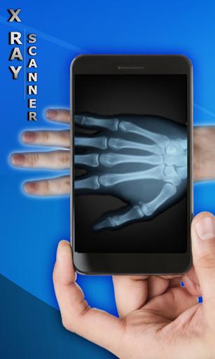 X光扫描仪(恶作剧)