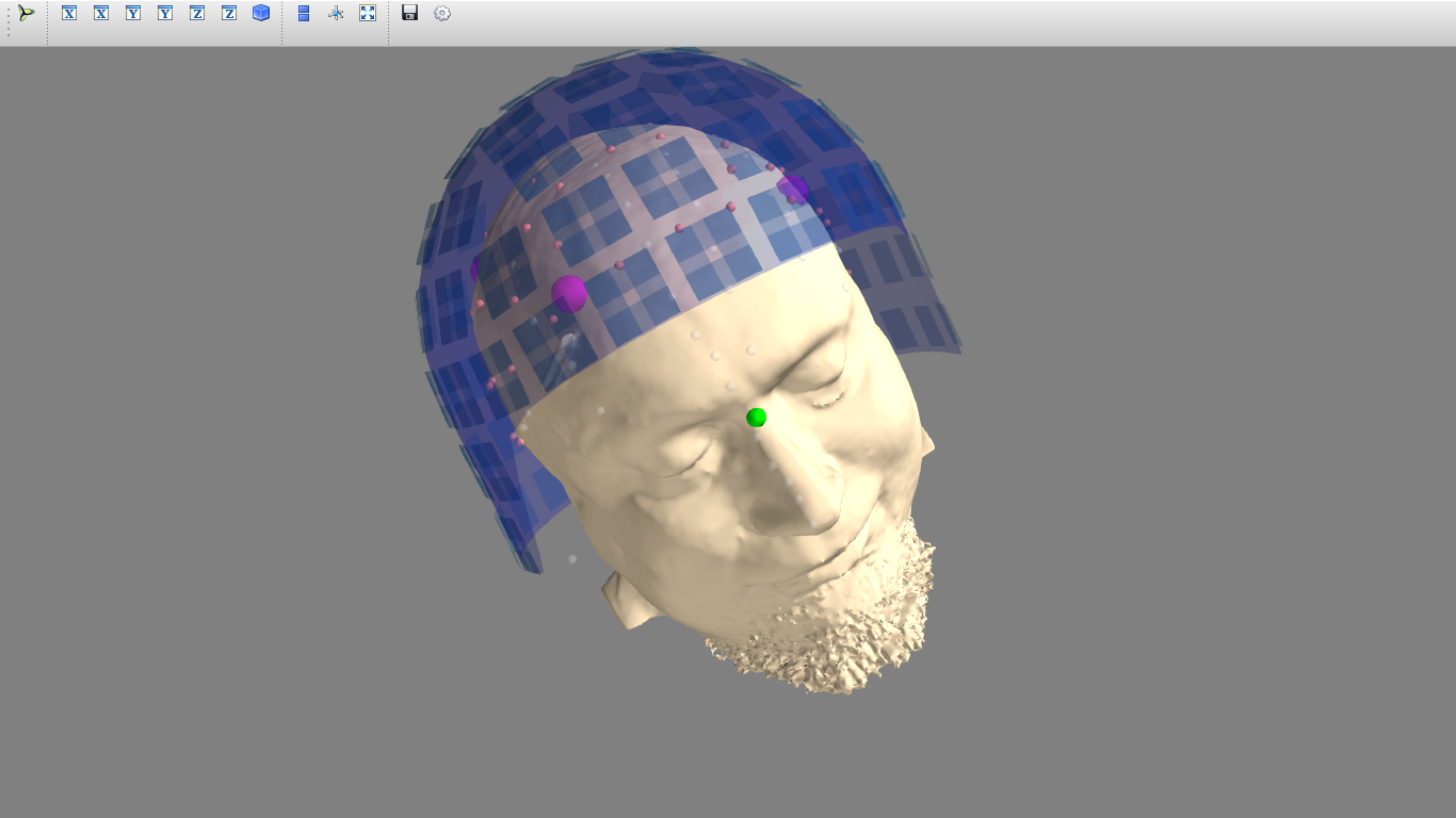 Image of a model of a patient with EEG sensors and a MEG helmet