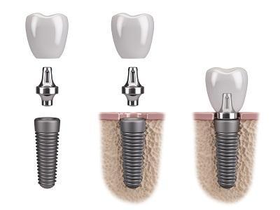 3d render of dental implant pieces